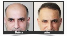 FUT And FUE Hair Loss Treatments