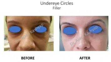 Under Eyes Dark Circles Treatment